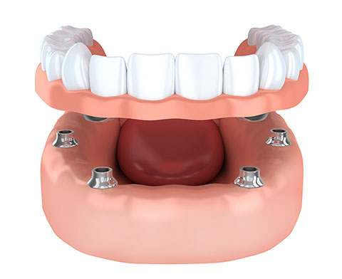 Teeth Replacement in Melbourne
